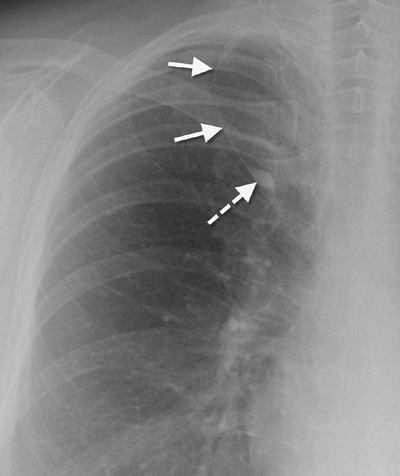 FIGURE 1-11. Accessory azygos fissure. The accessory azygos fissure (solid arrows) creates an accessory azygos lobe. The fissure contains the azygos vein (dashed arrow), which is higher than its usual location in the tracheobronchial angle.
