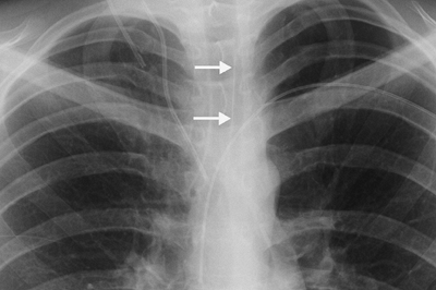 FIGURE 1-15. Posterior junction line on PA chest radiograph (arrows). Note that the line extends above the level of the clavicles.