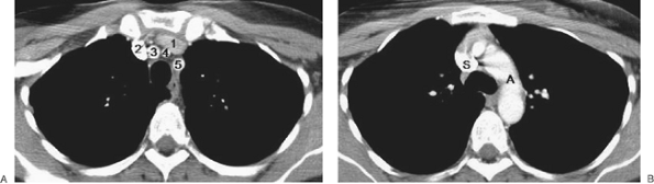 """FIGURE 1-4. Axial CT images (5-mm collimation) of the normal mediastinum with intravenous contrast enhancement. For all images, the window widths and levels are 350 and 35, respectively. A: The intravenous contrast was injected from a right antecubital vein. Every axial CT scan of the chest (10-mm collimation or less) in patients with standard anatomy will have at least one """"five-vessel image"""" like this, showing the left brachiocephalic vein (1), right brachiocephalic vein (2), innominate (brachiocephalic) artery (3), left common carotid artery (4), and left subclavian artery (5). B: Image inferior to (A) shows the aortic arch (A) and superior vena cava (S) densely enhancing with contrast. C: Image inferior to (B) shows ascending aorta (AA), descending aorta (DA), left pulmonary artery (LPA), and superior vena cava (SVC). D: Image inferior to (C) shows the right pulmonary artery (RPA). E: Image inferior to (D) shows the right (RLL) and left (LLL) pulmonary arteries. F: Image inferior to (E) shows the left superior pulmonary vein (LSPV). G: Image inferior to (F) shows the right superior pulmonary vein (RSPV). H: Image inferior to (G) shows the left atrium (LA) and left inferior pulmonary vein (LIPV). I: Image inferior to (H) shows the right atrium (RA), aortic outflow (AO), left atrium (LA), and right inferior pulmonary vein (RIPV). J: Image inferior to (I) shows the right ventricle (RV), left ventricle (LV), interventricular septum (dashed black arrow), papillary muscles (solid black arrow), esophagus (white arrow), and inferior vena cava (IVC)."""