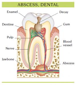 abscess_dental